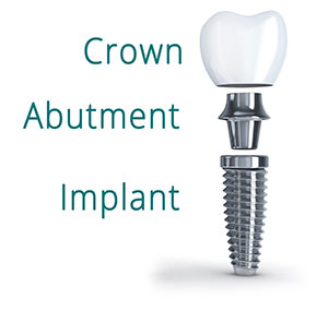 The parts of a dental implant